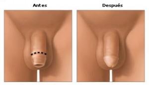 circuncison