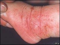 bebe con eczemas