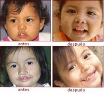 niños curados del labio leporino
