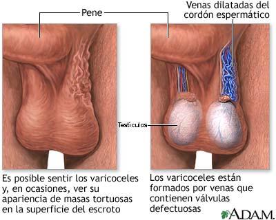 infertilidad-