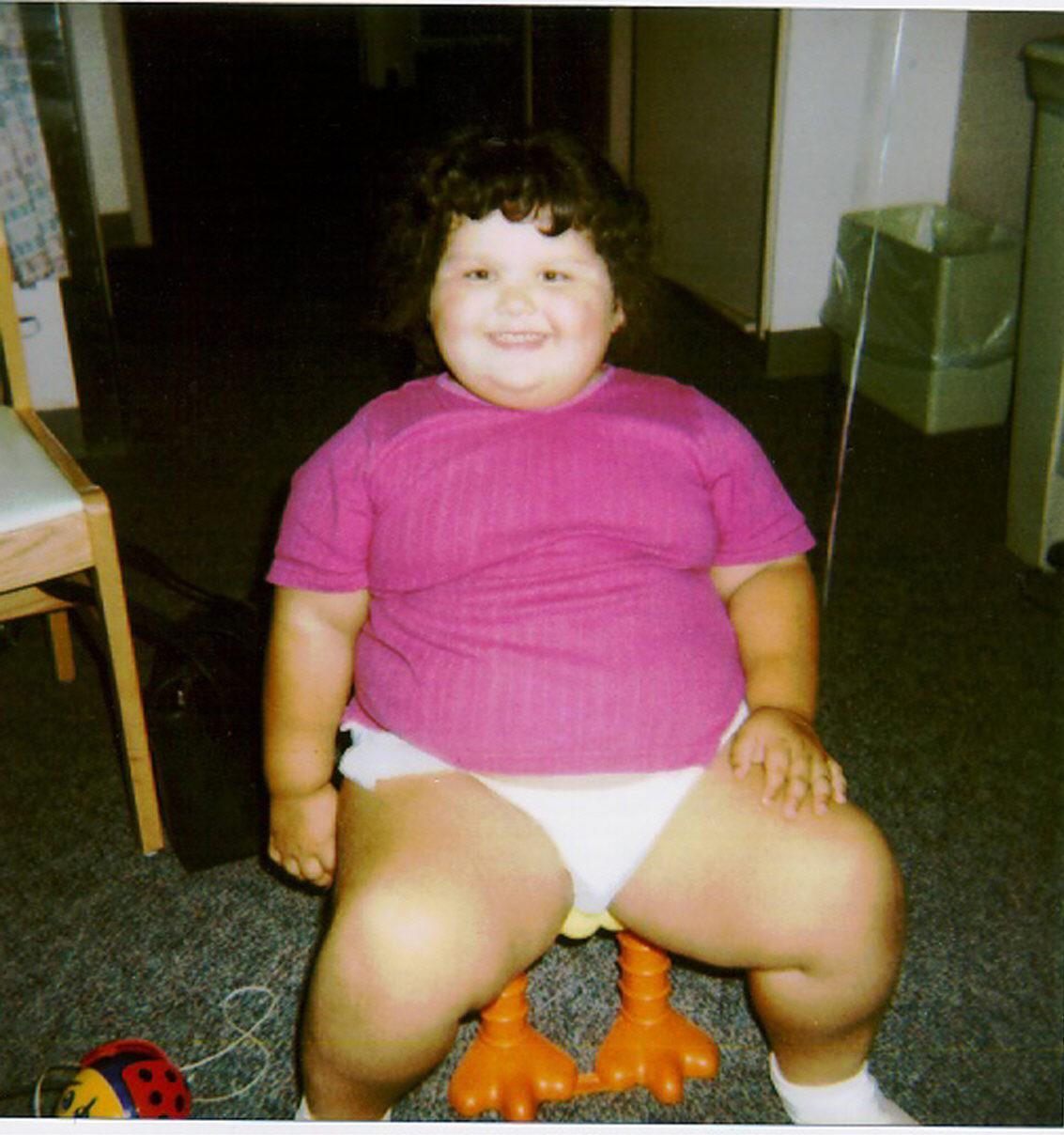 niña obesa