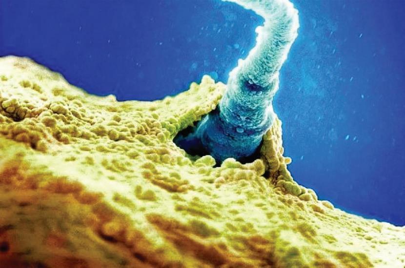 Espermatozoide fecundando óvulo