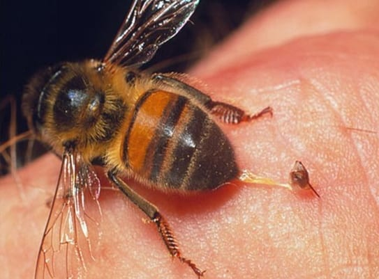 Como curar la picadura de una avispa o abeja