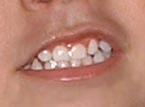 El niño rechina los dientes