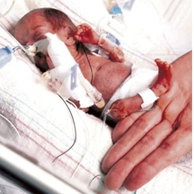 Los bebés prematuros de 22 y 23 semanas de gestación siguen sin mucha esperanza de vida