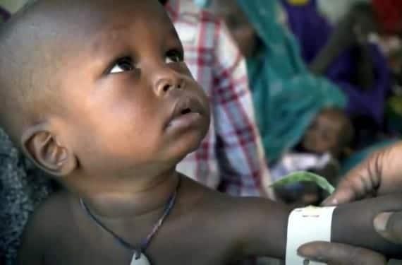 El cólera en la infancia