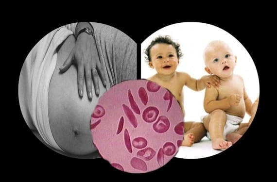 La anemia en el embarazo