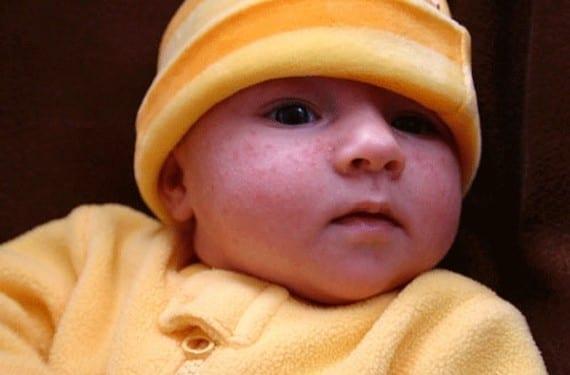Ronchas en la piel del bebé