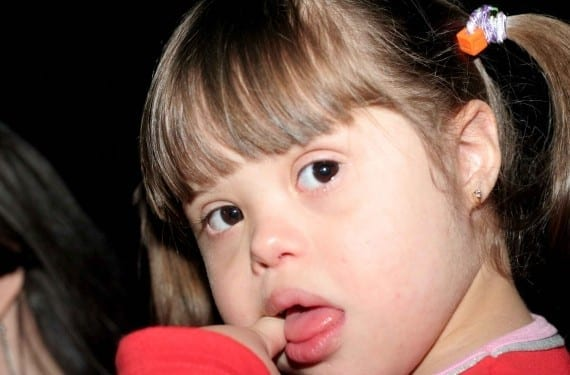 Síndrome de Down en bebés