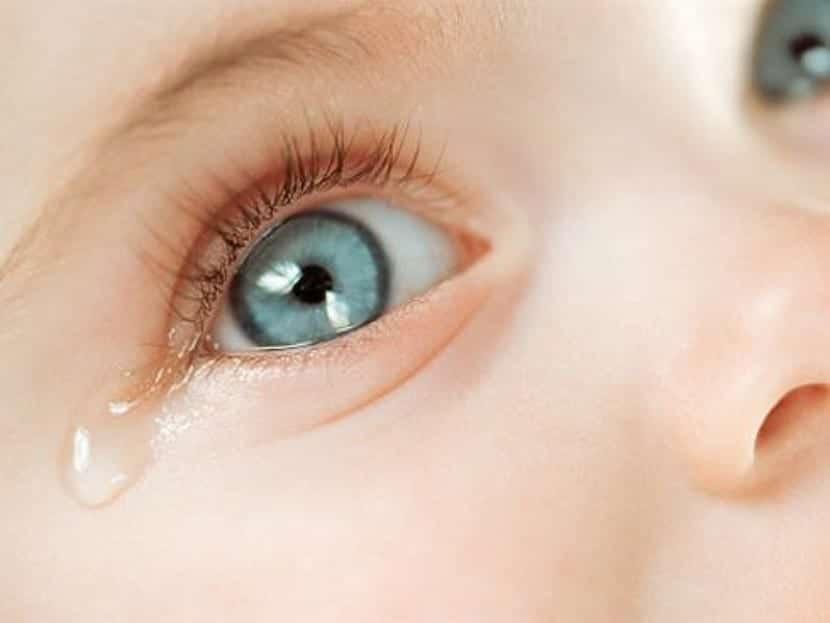 Conjuntivitis en bebés