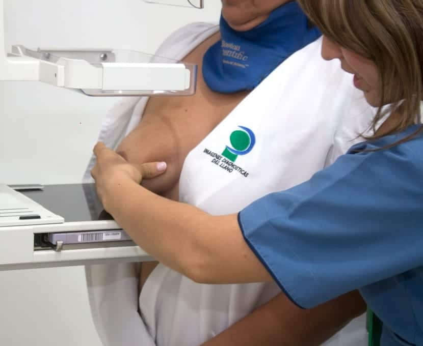 mamografía1