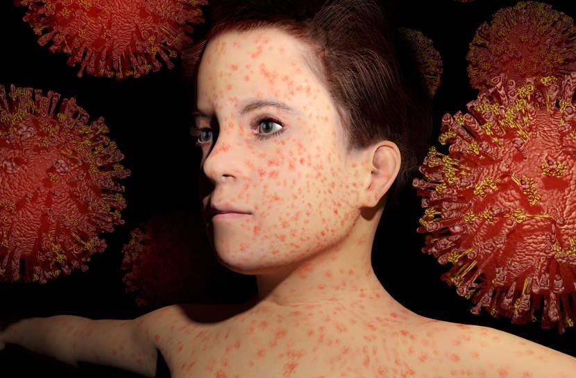 El sistema inmunológico de los niños queda debilita 3 años después de sufrir sarampión