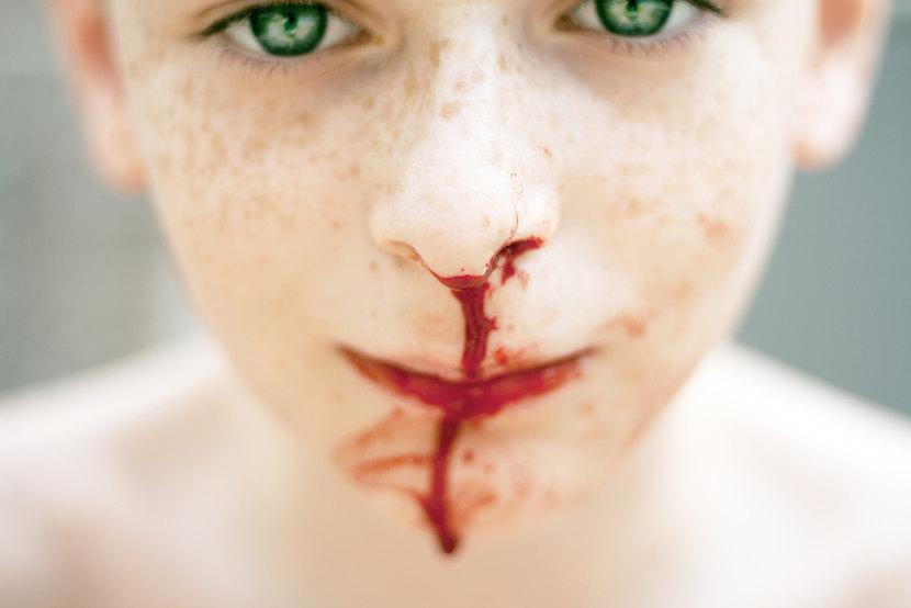 Cómo actuar ante las hemorragias nasales con los niños (epístaxis)