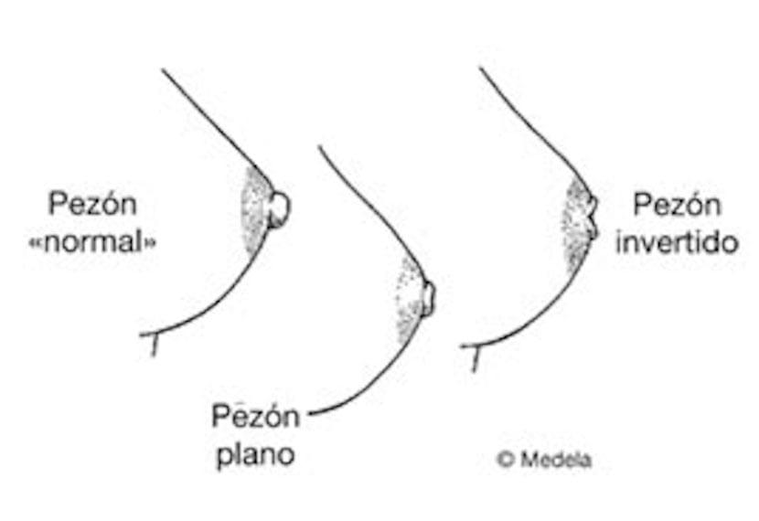 Pexones