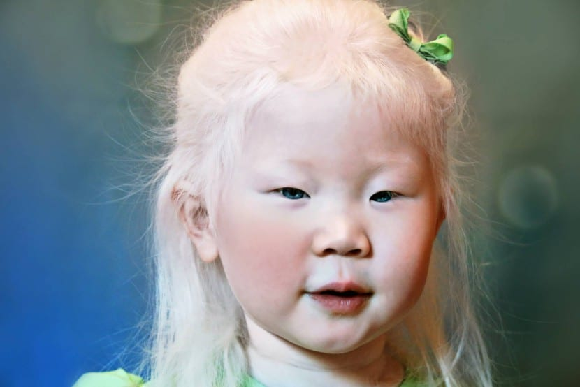 nena albina