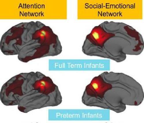 El nacimiento prematuro parece debilitar las conexiones cerebrales