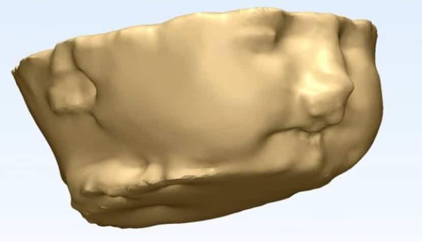 Una impresión 3D de cabeza fetal ayuda a tratar un problema masa de vías respiratorias potencialmente mortal