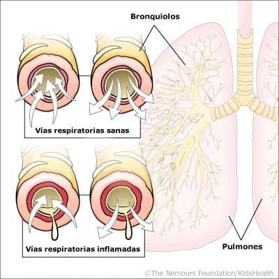 Ilustración bronquiolitis