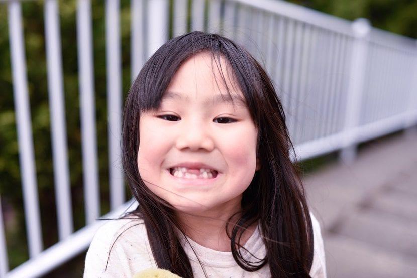 Dentición definitiva en niños