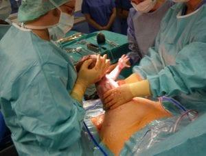 Humanizar las cesáreas, por el bienestar de los bebés y sus mamás