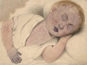 Ilustración de niño enfermo por sarampión