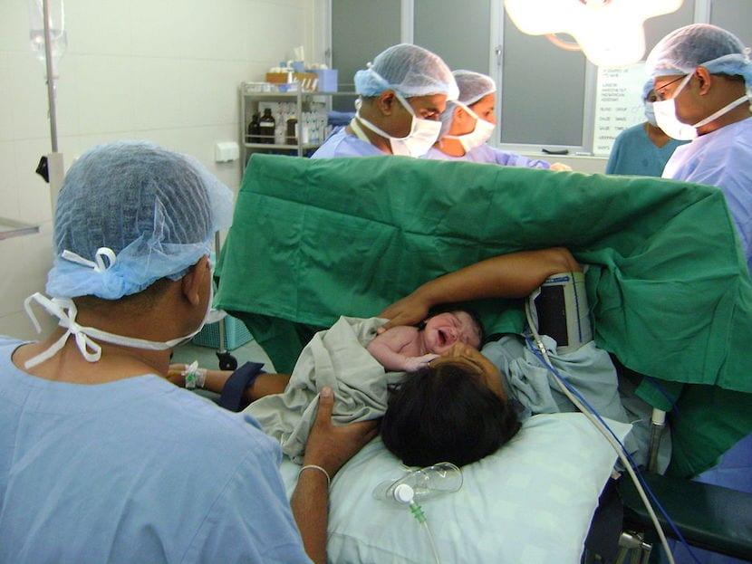Nacimiento por cesárea