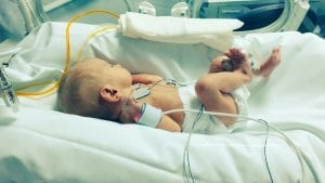 bebé prematuro musicoterapia