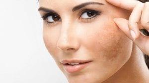Hiperpigmentación en el rostro
