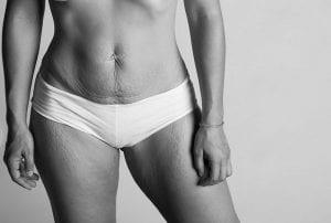 Diástasis abdominal