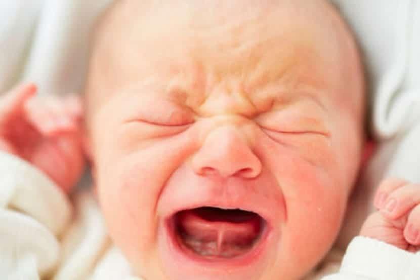 Bebé con frenillo lingual