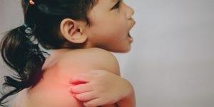 Picadura de mosquito en niños