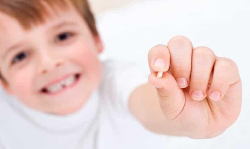 Caída de los dientes de leche