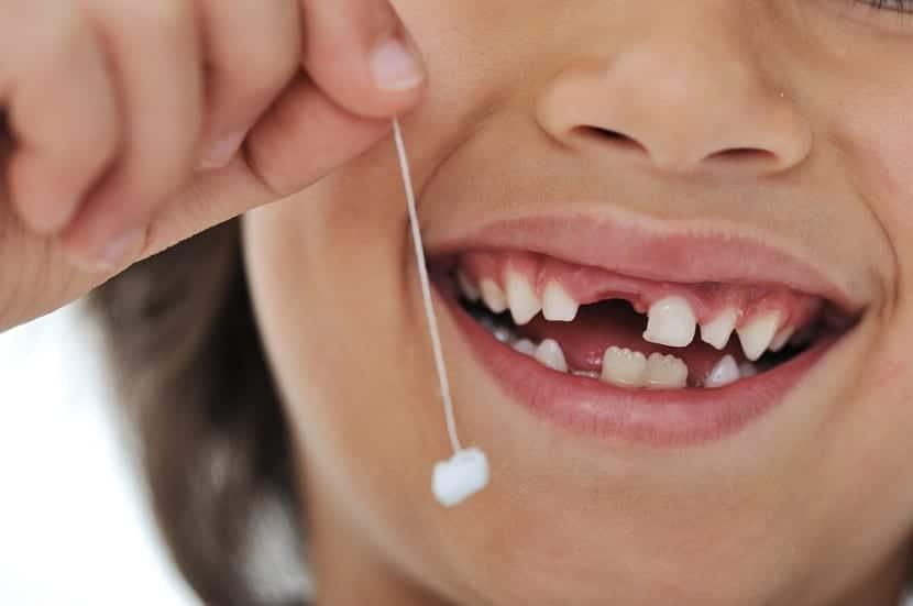 Quitar un diente de leche