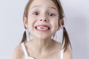 nena que tiene bruxismo infantil