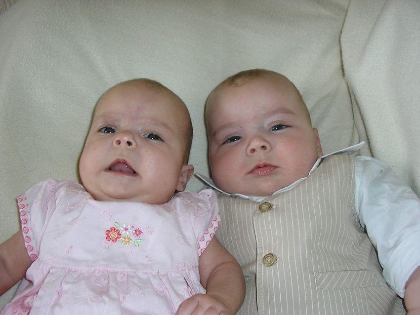 parto gemelos