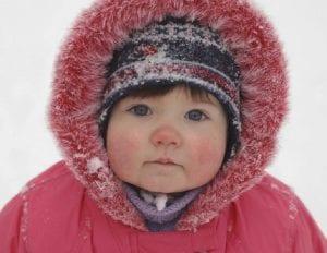 Sabañones en bebés y niños pequeños