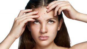 mujer-con-acne-en-la-frente