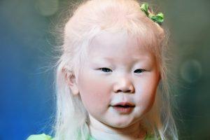 niños-albinos