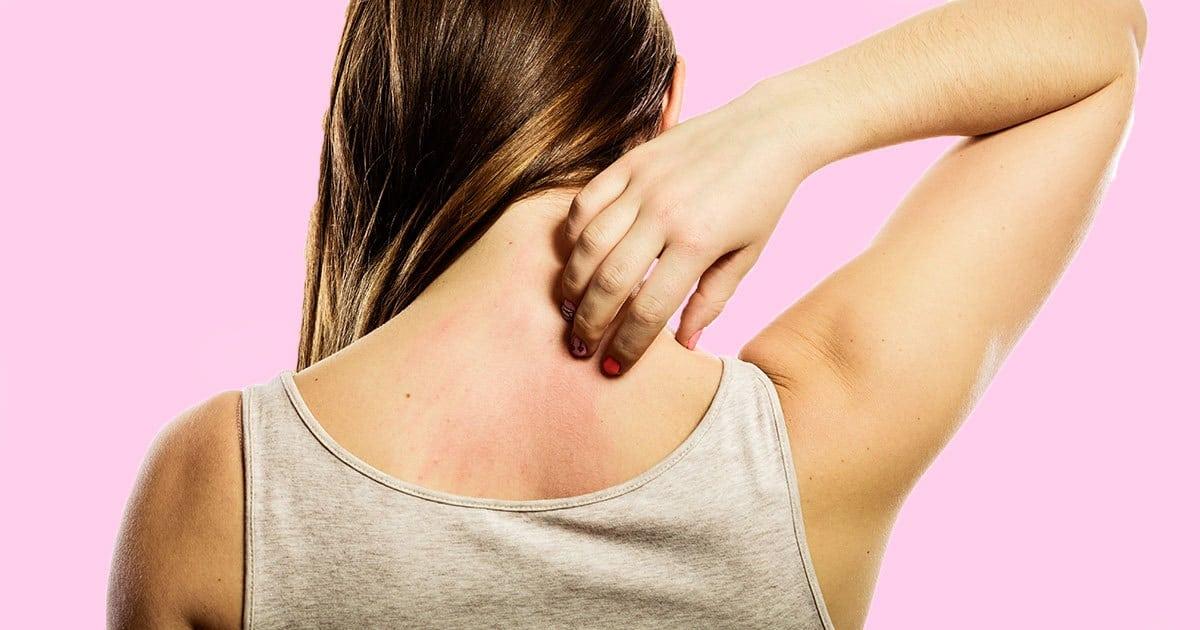 Remedios para la dermatitis