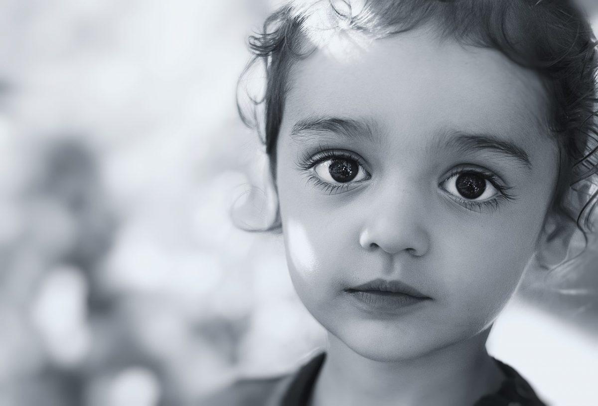 glaucoma infantil