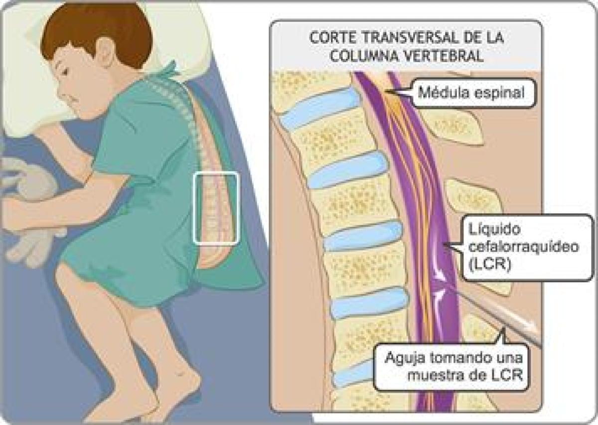 meningitis recurrente